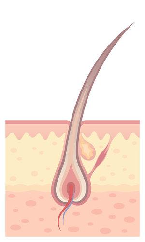 O pelo é formado no folículo piloso