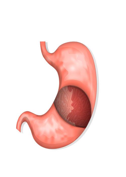 A gastrite é uma inflamação da mucosa que reveste o estômago.