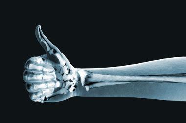 O raio X é um dos tipos de radiações presentes no espectro eletromagnético