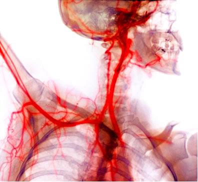 O sangue transportado pelo sistema circulatório é mantido com pH na faixa de 7,35 a 7,45, graças à ação de soluções-tampão