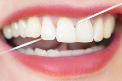 O uso do fio dental ajuda a prevenir doenças na gengiva e cáries
