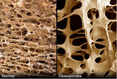 Imagens ampliadas de osso normal e osso com osteoporose