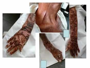 Pelagra significa pele áspera