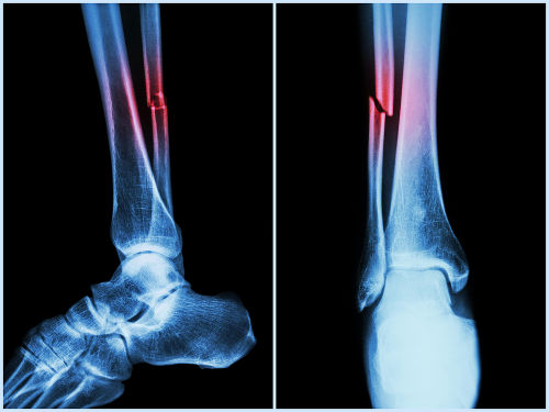Quando um osso quebra-se, temos um caso de fratura