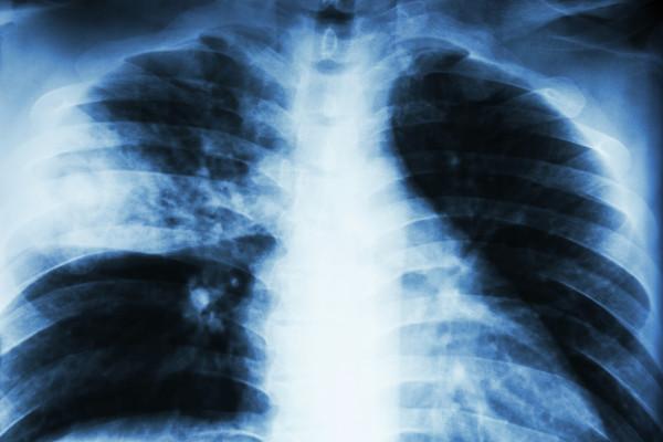 Raios x de pulmões comprometidos pela pneumonia
