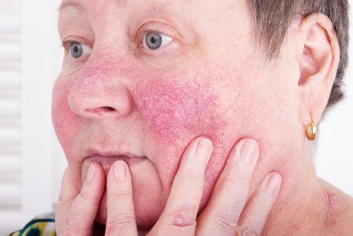 Rosácea é uma dermatose que afeta a pele do rosto.
