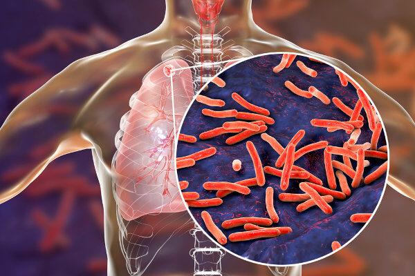 Na tuberculose, as bactérias podem afetar os pulmões do indivíduo.