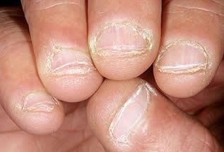 Unhas roídas deixam as mãos feias