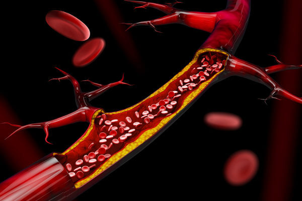 Os vasos sanguíneos são estruturas por onde o sangue do nosso corpo circula.