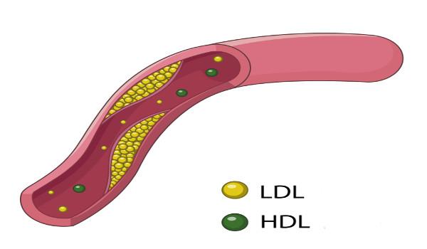 Veja acima uma representação de como a HDL e a LDL atuam no sistema cardiovascular