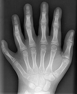Radiografia indicando formação polidactila (6 dedos na mão)