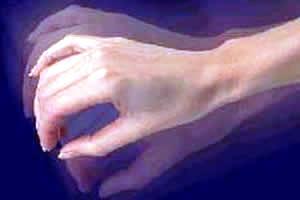 A hiperecplexia é caracterizada por tremores involuntários em resposta a determinados estímulos sensoriais.