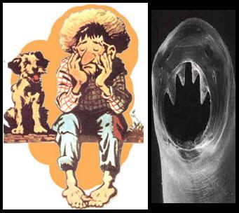 Jeca Tatu: personagem literário com sintomatologia típica de ancilostomose. À direita: imagem evidenciando o aparelho bucal do verme parasita.