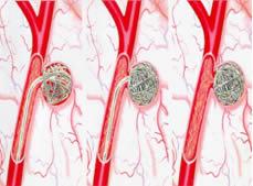 Embolização é uma técnica moderna para se minimizar o aneurisma