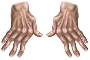 Manifestação da doença nas mãos