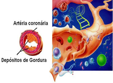 Aterosclerose: formação de placas lipídicas (colesterol LDL) na parede das artérias