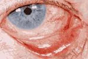A conjuntivite se caracteriza por uma vermelhidão característica