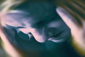 A enxaqueca se manifesta com maior frequência em mulheres