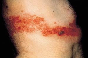 Lesões típicas do herpes-zóster