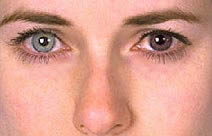 Diferenciação da pigmentação da íris