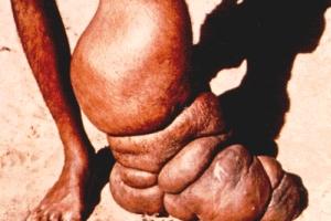 A elefantíase ocorre em aproximadamente 15% dos casos de filariose