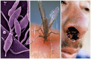Parasita, vetor e ferida típica da leishmaniose tegumentar