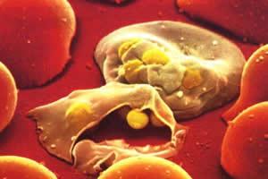 Hemácias destruídas pelos protozoários causadores da malária