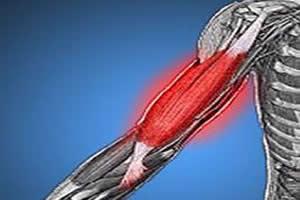 Exercícios físicos intensos, sem o devido preparo físico, causam dores musculares