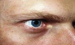 Concentração de melanina abaixo dos olhos