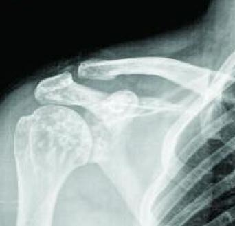 Ombro direito com osteopoiquilose