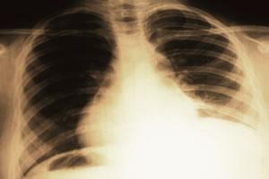O raio-x é um dos exames que detecta a pleurisia