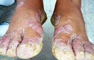 A psoríase é uma doença dermatológica crônica não transmissível