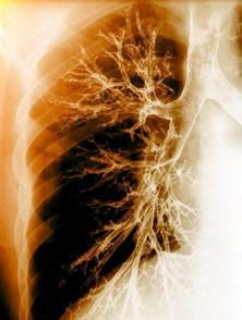 Fibrose cística: uma patologia genética que compromete o funcionamento do sistema respiratório
