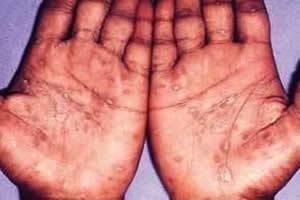 Lesões típicas da sífilis secundária