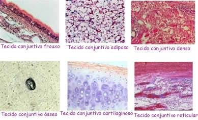 Classificação e tipos de tecidos conjuntivos