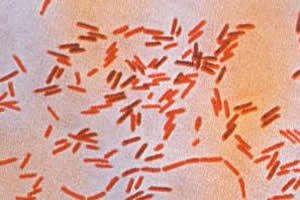 Bactérias causadoras da febre tifoide.