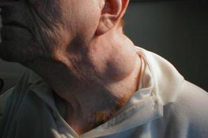 Lipoma: um tumor benigno