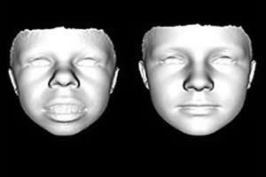 Padrões faciais de portadores da Síndrome de Williams e de não portadores.