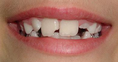 O dente Incisivo tem a função de cortar os alimentos