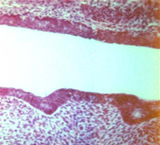 A odontogênese é dividida em fases
