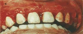 O tártaro pode se formar sobre os dentes e a gengiva