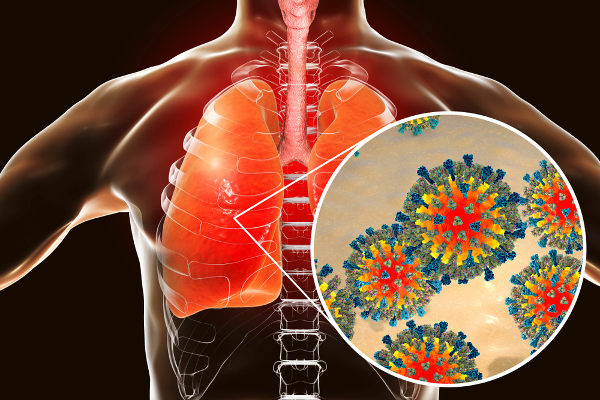 O sarampo é causado por um vírus que é transmitido por meio de secreções expelidas ao tossir, falar, espirrar ou respirar