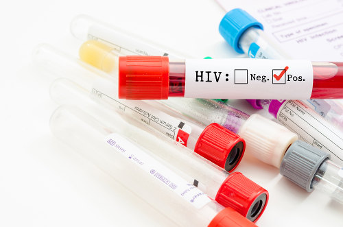 Uma pessoa HIV positiva não necessariamente está com AIDS