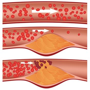 Entupimento das artérias (aterosclerose) por excesso de colesterol do tipo LDL