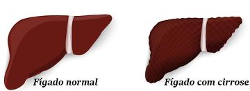 Observe a diferença entre um fígado normal e com cirrose