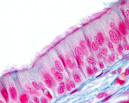 O tecido pseudoestratificado apresenta apenas uma camada de células
