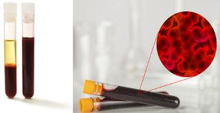 Sangue centrifugado e sua imagem no microscópio