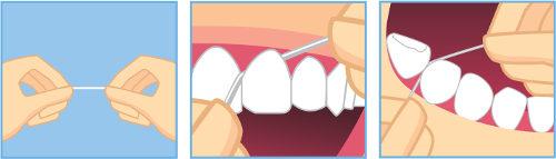 Observe a forma adequada de se passar o fio dental