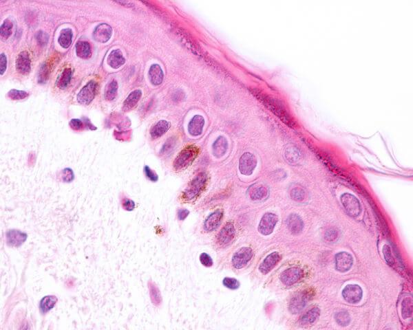 A epiderme, uma das camadas que formam a pele, é constituída de tecido epitelial.