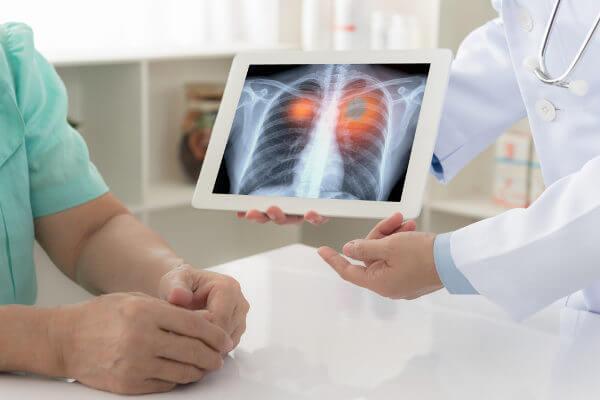 O cigarro relaciona-se com o desenvolvimento de câncer de pulmão.